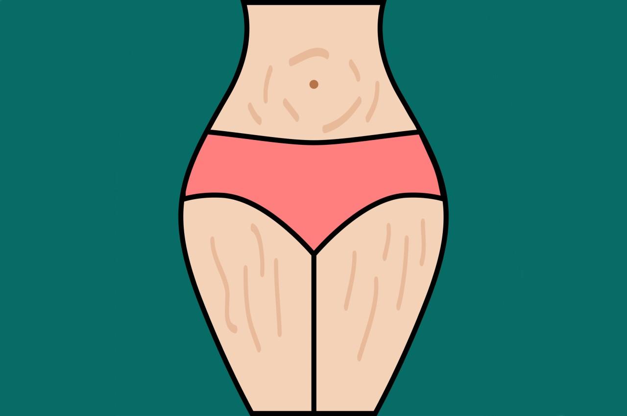O que faz um especialista em fisioterapia dermatofuncional?
